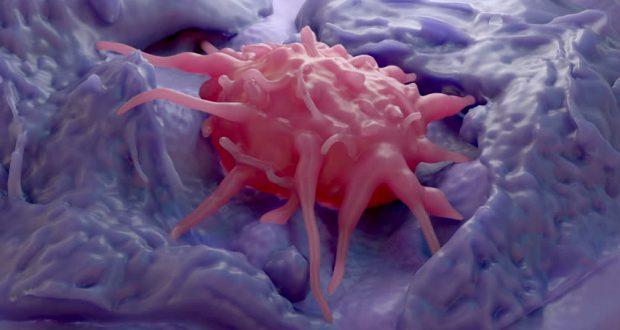 Эозинофилия - диагностика, причины, симптомы, лечение