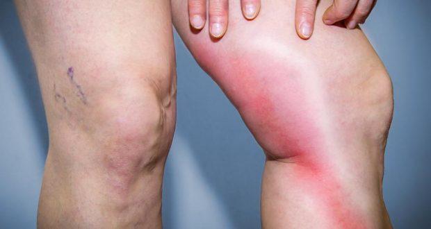 Лимфостаз - причины, симптомы, диагностика и лечение