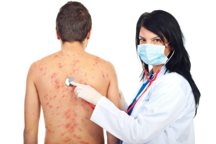 Лечение лямблий у взрослых