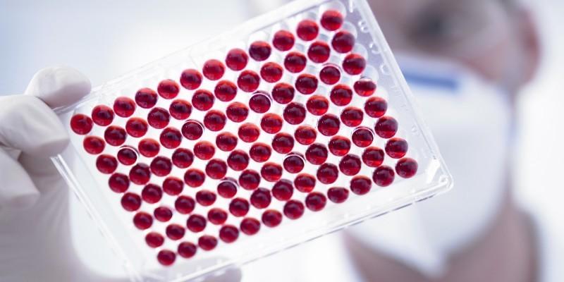 Расшифровка анализа крови ИФА