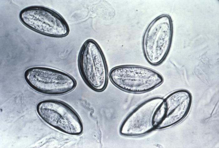 Соскоб на энтеробиоз у взрослых