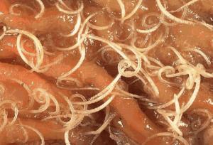 Как принимать гвоздику от глистов