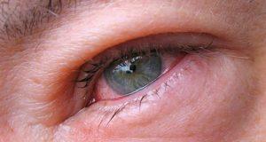 Трихинеллез  – признаки, симптомы и лечение у человека