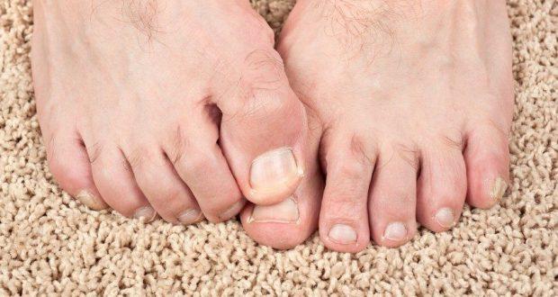 Грибок на ногах - симптомы, причины и методы лечения