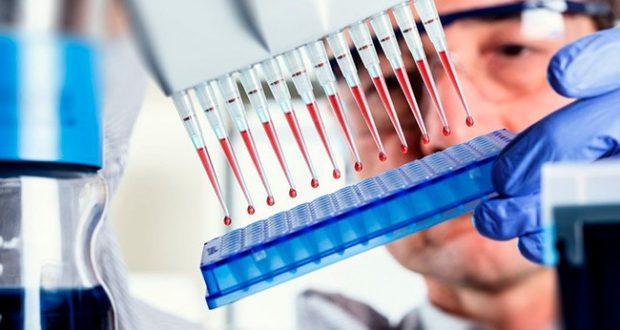 Иммуноферментный анализ крови в паразитологии
