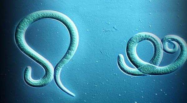 Энтеробиоз у взрослых: проведение анализа (соскоб)