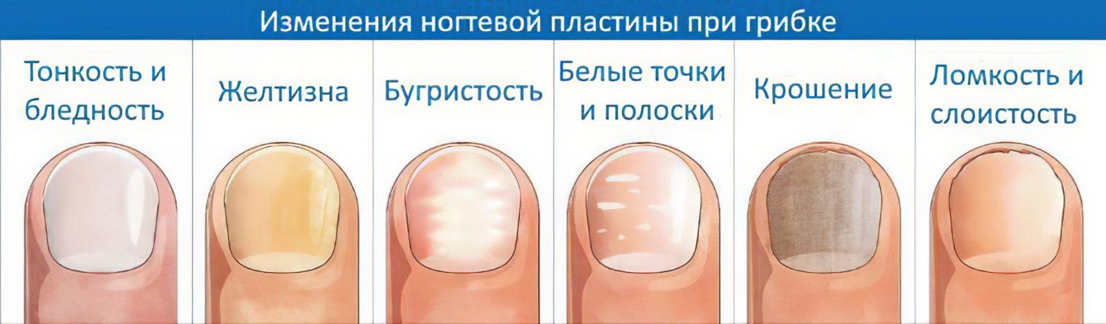 Грибок ногтей - медикаментозные и народные методы лечения
